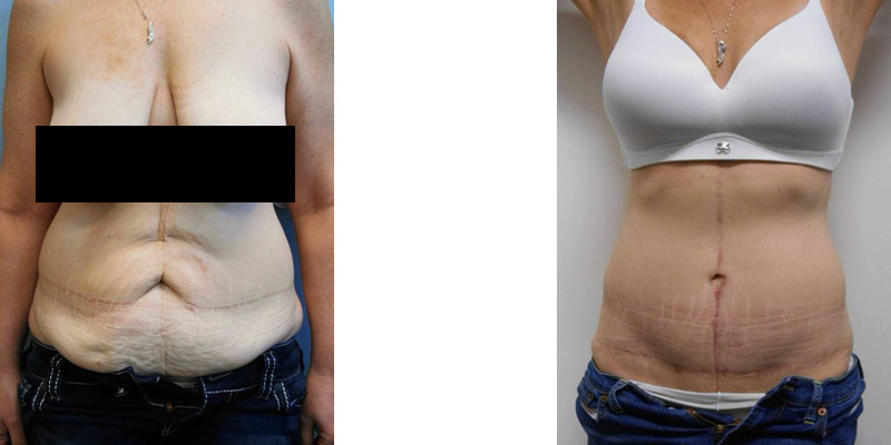 Body Contouring - Before and After panniculectomy picture of a woman