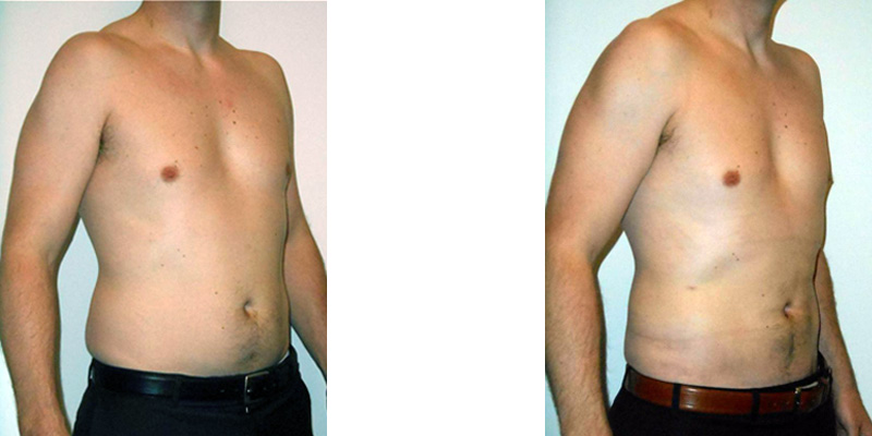 Before and after pictures of liposuction of abdomen on man